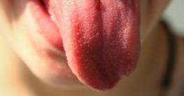 Zungenreiniger