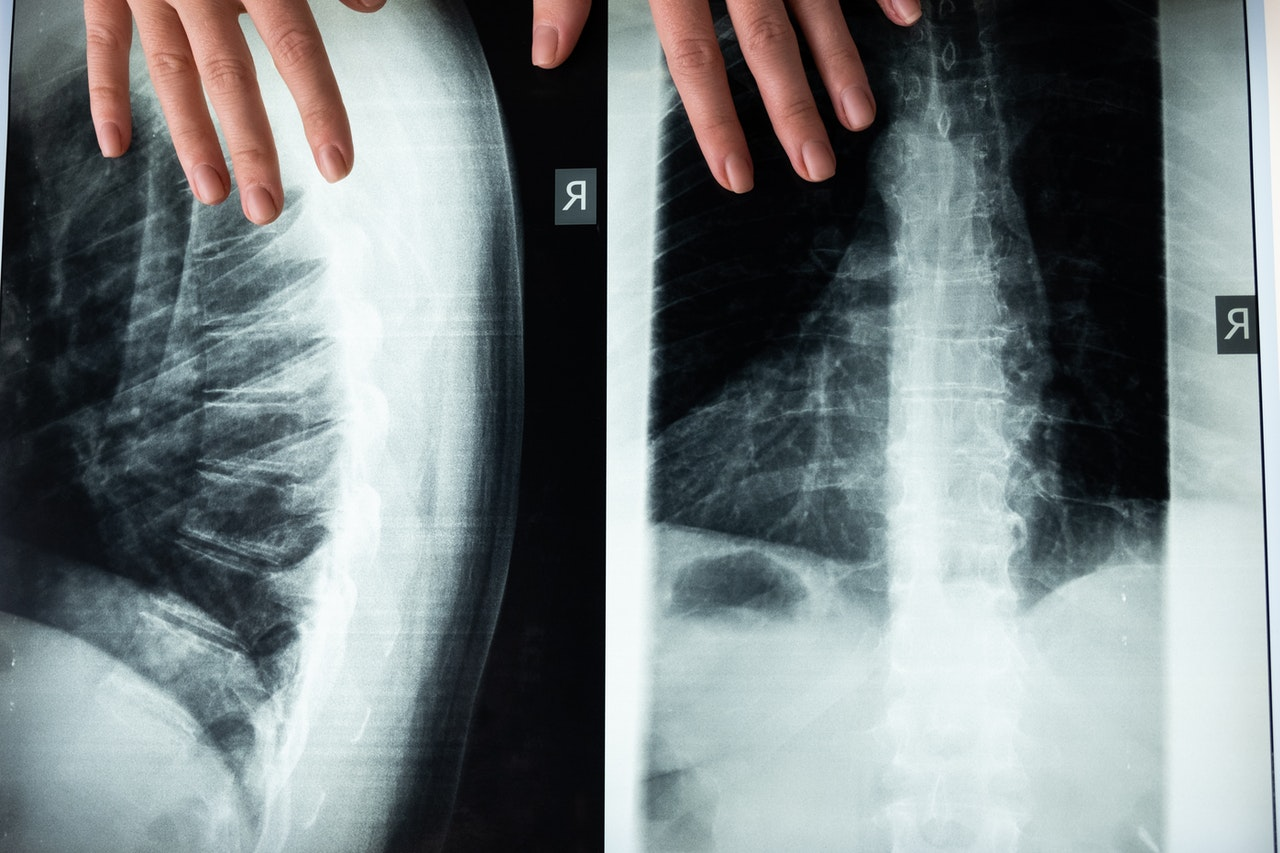 Lordosekissen werden auf Basis von orthopädischen Grundlagen gefertigt.